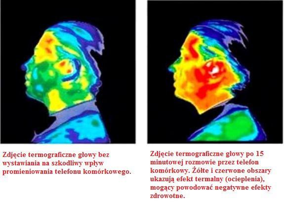 energia_skalarna_zmiana_temperatury głowy